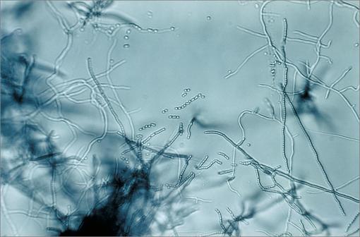La doxorubicine est une molécule appartenant à la famille des anthracyclines et produite par des bactéries du genre Streptomyces (illustration @Wikimedia).
