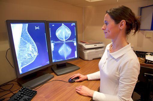 Le dépistage organisé du cancer du sein s'effectue par invitation pour une mammographie tous les 2 ans de 50 à 74 ans (illustration).