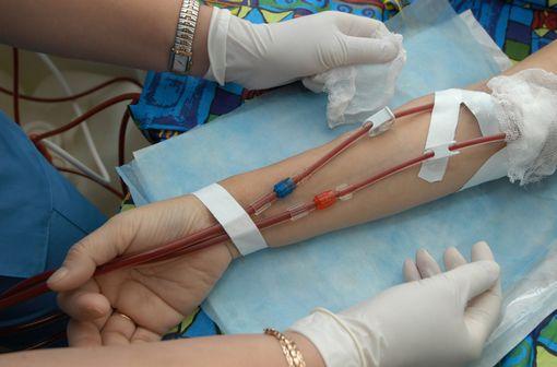 Davantage de formes sévères chez les hémodialysés (illustration).