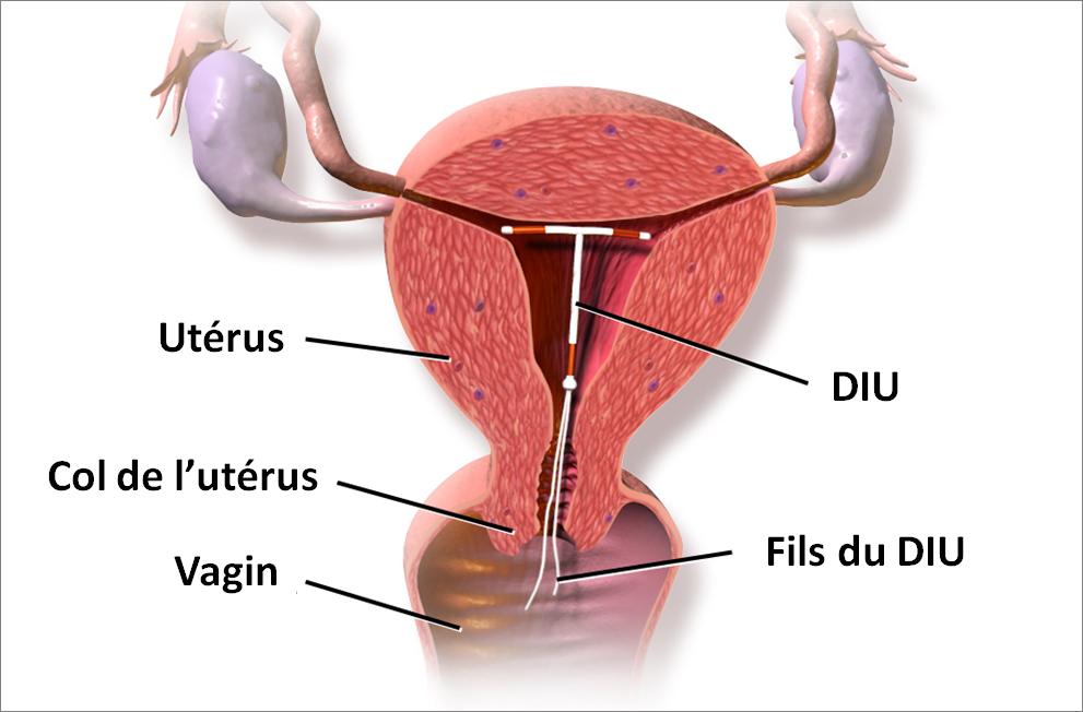 En 3 ans, deux fois plus de jeunes femmes ont opté pour un dispositif intra-utérin (illustration : © BruceBlaus, Wikimedia Commons).