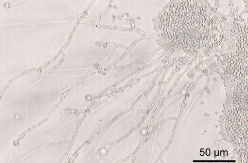 Candida albicans vus au microscope (illustration @ Y. Tambe sur Wikimedia).