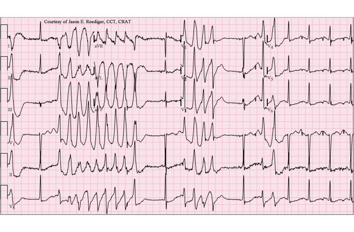Electrocardiogramme montrant un allongement des espaces QT et captant des torsades de pointe (image : @ Jer5150, Wikimedia).