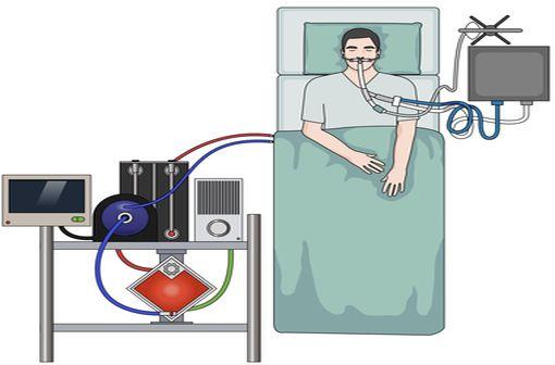 Une technique d'assistance respiratoire qui ne peut être mise en place que par des équipes spécialisées (illustration).