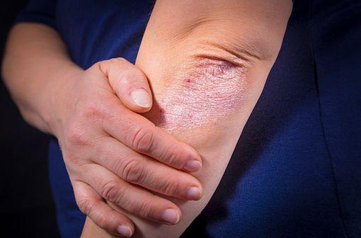 Lésion de psoriasis localisée au coude chez un adulte (illustration).