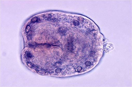 Protoscolex d\'Echinococcus granulosus issu d\'un kyste hydatique (illustration @CDC/Dr. L.L.A. Moore sur Wikimedia).