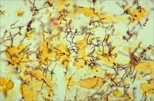 Histopathologie de spirochètes de Treponema pallidum utilisant une coloration argentique modifiée de Steiner (illustration @CDC/Dr Edwin P. Ewing, Jr. 1986).
