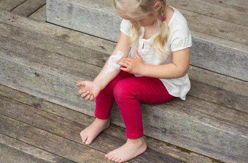 L'eczéma est relativement fréquent chez les enfants, en particulier au niveau des plis (illustration).