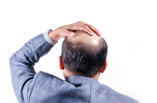 L'alopécie androgénétique touche 70 % des hommes, dont 20 % entre 20 et 30 ans (illustration).