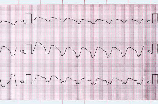 Tracé ECG d'une tachycardie ventriculaire paroxystique (illustration).