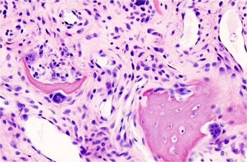 Histopathologie d'une ostéoarthrose du genou chez une femme âgée (illustration @Wikimedia).