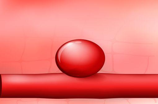 Fluoroquinolones : mise en garde sur le risque de survenue d'anévrisme et de dissection aortique