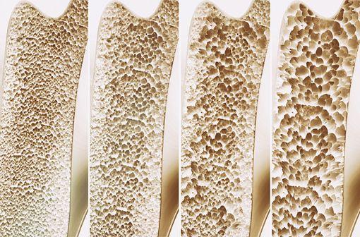 Représentation en 3D de 4 stades de gravité croissante d'ostéoporose (illustration).