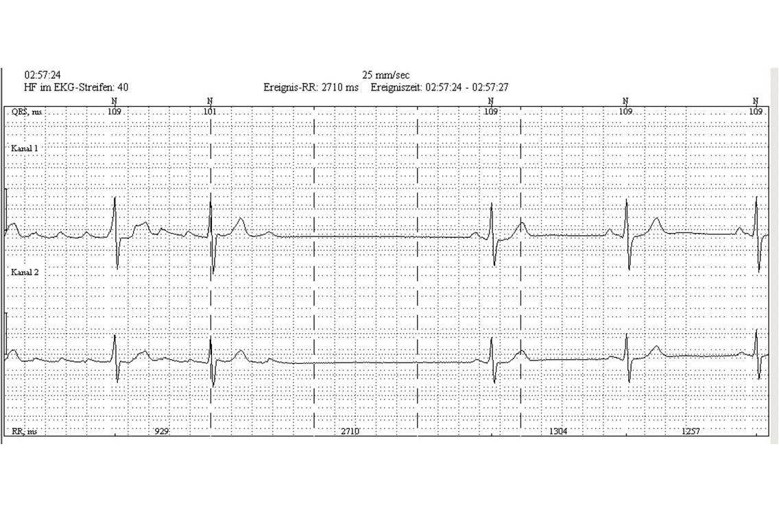 Holter cardiaque : flutter atrial (à gauche) avec retour en rythme sinusal (cliché : @ J. Heuser, Wikimedia).