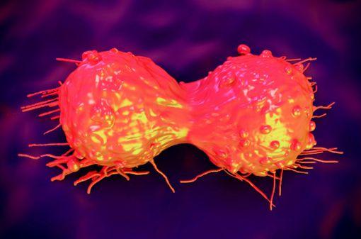 Cellules cancéreuses du col de l'utérus, vues au microscope électronique à balayage (illustration).