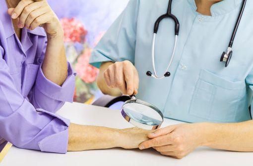 Les patients traités par hydrochlorothiazide doivent vérifier régulièrement l'état de leur peau et faire examiner toute lésion cutanée suspecte par leur médecin (illustration).