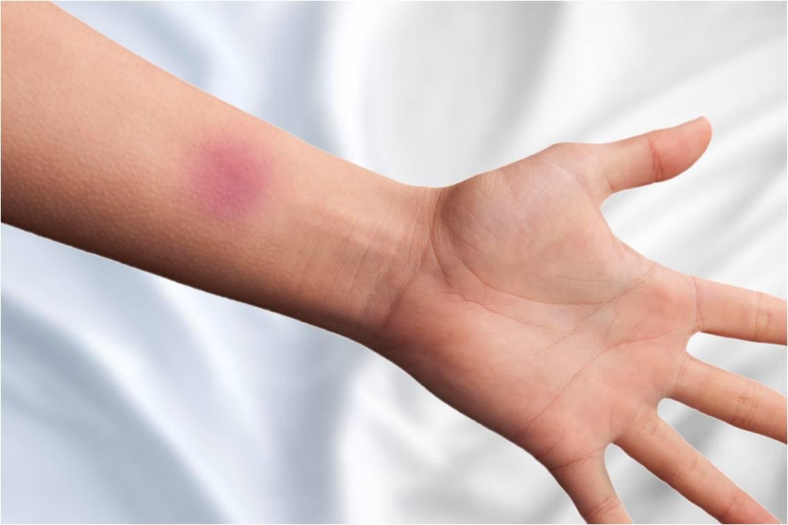 HEMOCLAR est indiqué dans le traitement local d'appoint des ecchymoses et des contusions (illustration).