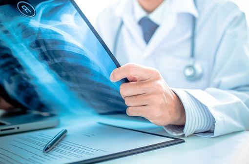HEXASTAT est indiqué en traitement de deuxième ligne du cancer de l'ovaire et du cancer bronchique à petites cellules (illustration).