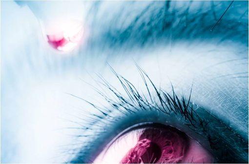 HYLO CONFORT PLUS soulage les symptômes de sécheresse oculaire sévères ou persistants (illustration).