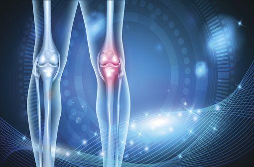 HYMOVIS est indiqué dans le traitement des douleurs liées l'arthrose et dans le traitement conservateur des lésions méniscales du genou (illustration).