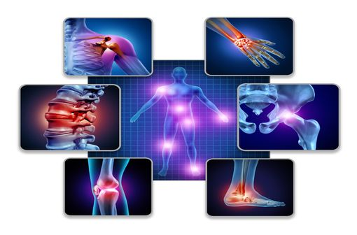 Les arthrites de la maladie de Still sont disséminées (polyarthrite) et touchent les grosses articulations mais aussi les articulations des doigts et le rachis cervical (illustration).