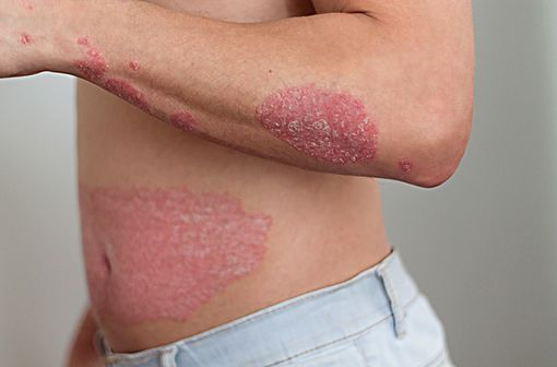 Le psoriasis en plaques se traduit par l'apparition de plaques rouges souvent irritantes et d'une accumulation de squames qui peuvent se situer sur tout le corps (illustration).