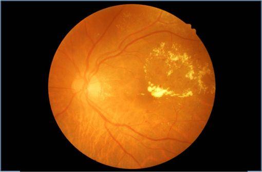 Cliché d'un fond d'oeil montrant des lésions de rétinopathie diabétique (ilustration).
