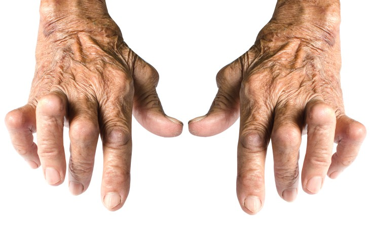 Lésions de polyarthrite rhumatoïde au niveau des interphalangiennes proximales et des métacarpophalangiennes.