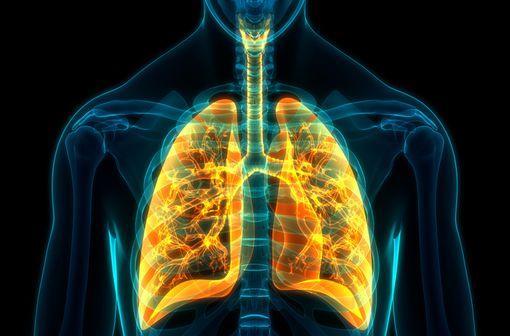 Environ deux tiers des cas de cancer bronchique non à petites cellules (CBNPC) localement avancés sont diagnostiqués à un stade déjà non opérable (illustration).