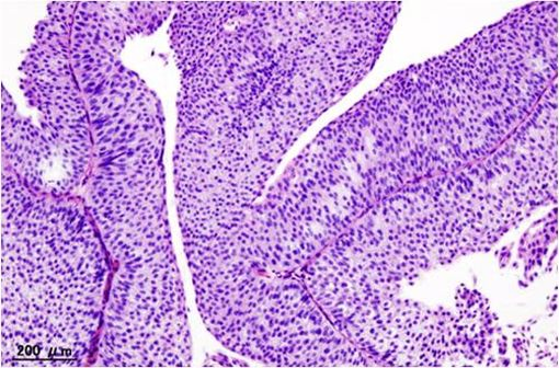 Image histopathologique d'un carcinome urothélial de la vessie de stade pT1 (illustration @Wikimedia).
