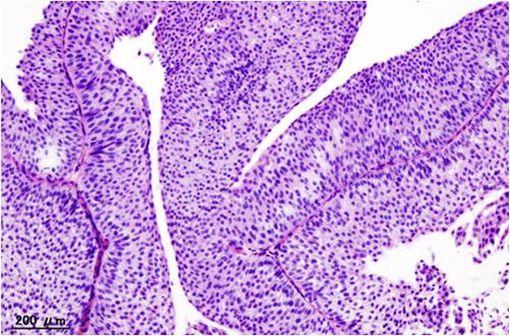 Coupe histologique d'un carcinome urothélial de vessie de grade T1a (illustration @Wikimedia).