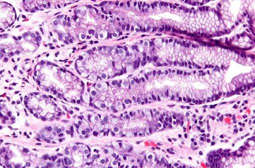 Micrographie de l'antre gastrique montrant une hyperplasie des cellules G, un changement histomorphologique observé avec l'utilisation d'un IPP (illustration @Nephron sur Wikimedia).