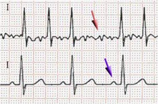 Electrocardiogramme montrant, en haut, des trémulations de la ligne iso-électrique témoins d'une fibrillation auriculaire et, en bas, un tracé normal en rythme sinusal où la flèche violette désigne l'onde P (illustration @J. Heuser sur Wikimedia).