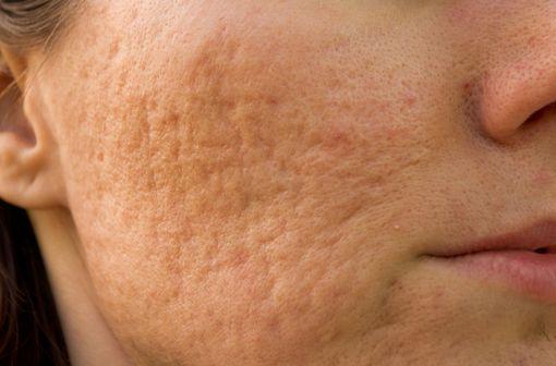 L'isotrétinoïne est indiquée dans le traitement des acnés sévères résistantes à des cures appropriées de traitement classique (illustration).