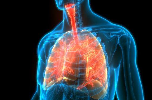 La mucoviscidose est une maladie génétique qui se caractérise par des sécrétions visqueuses au niveau de plusieurs organes, principalement les poumons et le pancréas (illustration).