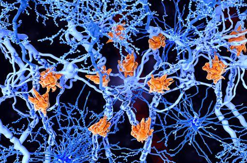 La sclérose en plaques (SEP) est une maladie chronique inflammatoire démyélinisante du système nerveux central (illustration).