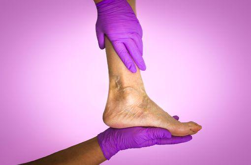 Les ulcères veineux sont variqueux (post-thrombotiques) dans 50 % des cas, ou dus à une insuffisance veineuse chronique, chez les personnes âgées particulièrement (illustration).