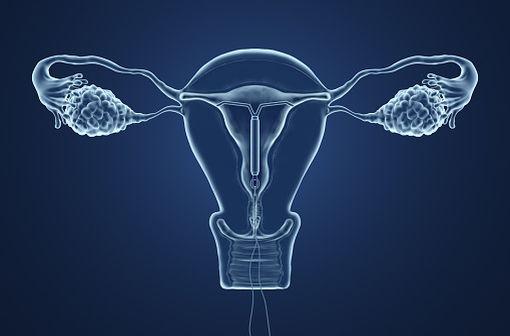Le dispositif ou système intra-utérin, anciennement appelé stérilet, est un contraceptif inventé en 1928 par Ernst Gräfenberg (illustration).