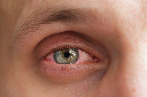LEVOFREE est indiqué dans le traitement des conjonctivites allergiques (illustration).