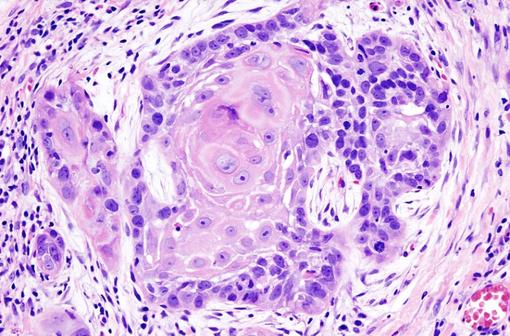 Carcinome épidermoïde invasif bien différencié (illustration @Wikimedia).