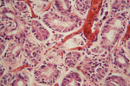 Vue au microscope de tissu pulmonaire humain avec une embolie pulmonaire (illustration).