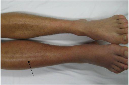 Thrombose veineuse profonde dans la jambe droite, avec rougeur et inflammation (photo @ Dr James Heilman, sur Wikimedia).