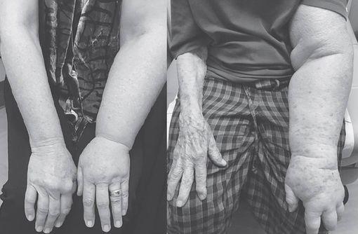 Traitement du cancer du sein : comment prévenir et, si besoin, traiter un lymphoedème du bras ?