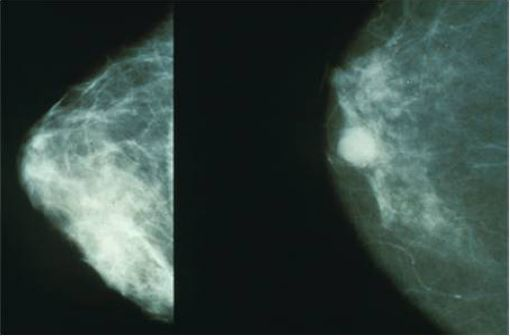 Mammographie montrant un cancer du sein à droite (illustration).
