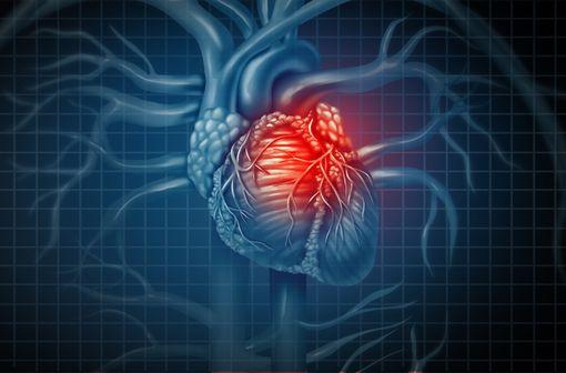 METALYSE est un traitement thrombolytique indiqué chez les adultes en cas de suspicion d'infarctus du myocarde (illustration).