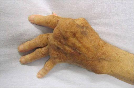 Polyarthrite rhumatoïde sévère de la main, non traitée (illustration @James Heilman, MD, sur Wikimedia).