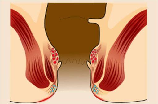 La pathologie hémorroïdaire touche les plexus veineux du canal anal, représentés ici en rouge pour les plexus internes et en bleu pour les plexus externes (illustration @Armin Kübelbeck, sur Wikimedia).