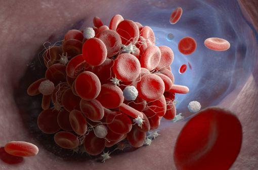 Représentation en 3D de la formation d'un caillot sanguin dans un vaisseau (illustration).
