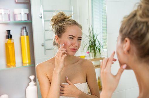 MISOLFA peut être utilisé en 2e intention par les femmes atteintes d'acné modérée acceptant de recevoir une pilule contraceptive (illustration).