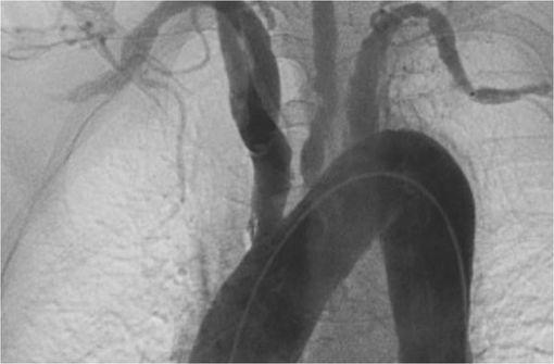 Angiographie révélant une artérite de Takayasu (cliché @ Justin Ly sur Wikimedia).
