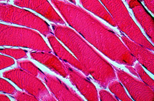 Les syndromes myotoniques se manifestent par une difficulté à la décontraction musculaire en relation avec un état d'hyperexcitabilité de la membrane de la fibre musculaire (illustration)